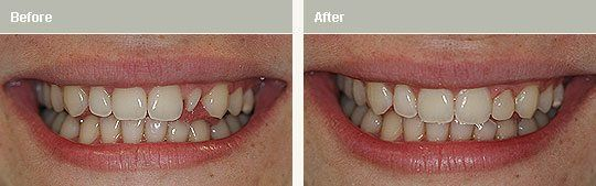 resin veneers case study