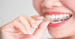 Differences and similarities between braces and Invisalign All About Teeth