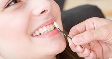 3 Common Problems Fixed by Veneers | All About Teeth